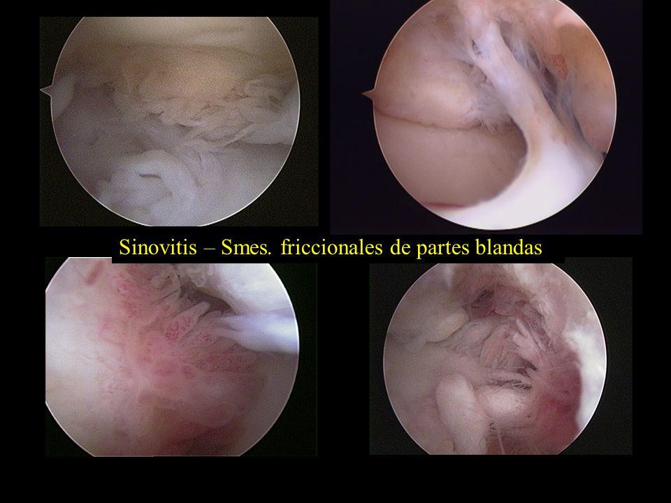 Sinovitis – Smes. friccionales de partes blandas