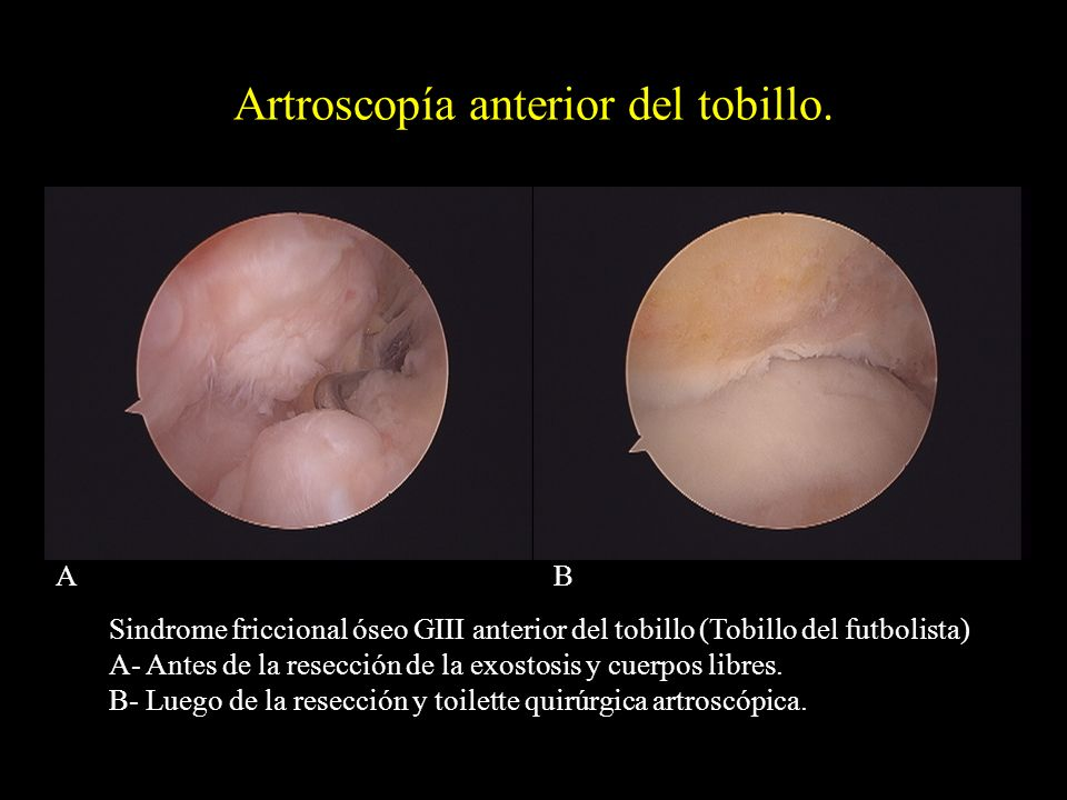 Artroscopía anterior del tobillo.