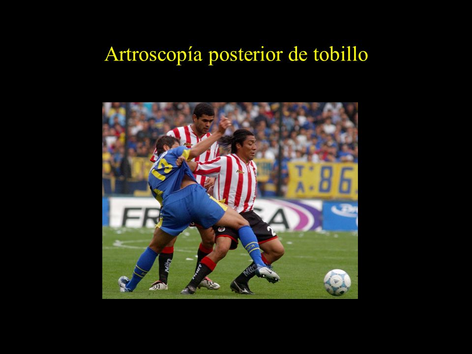 Artroscopía posterior de tobillo