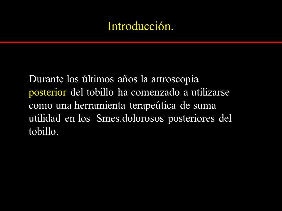 Introducción. Durante los últimos años la artroscopía