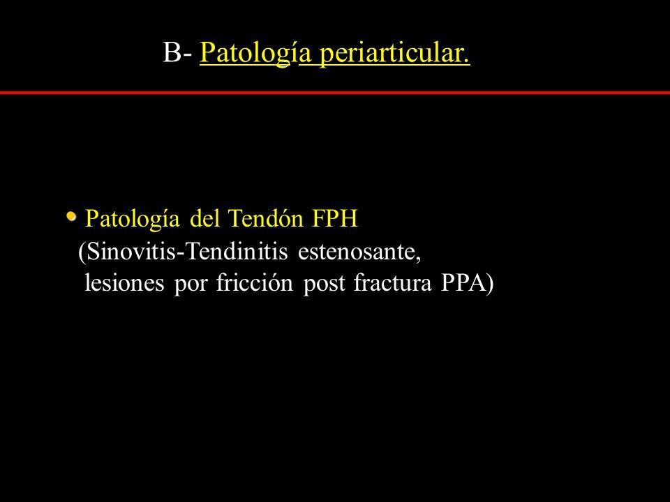 Patología del Tendón FPH