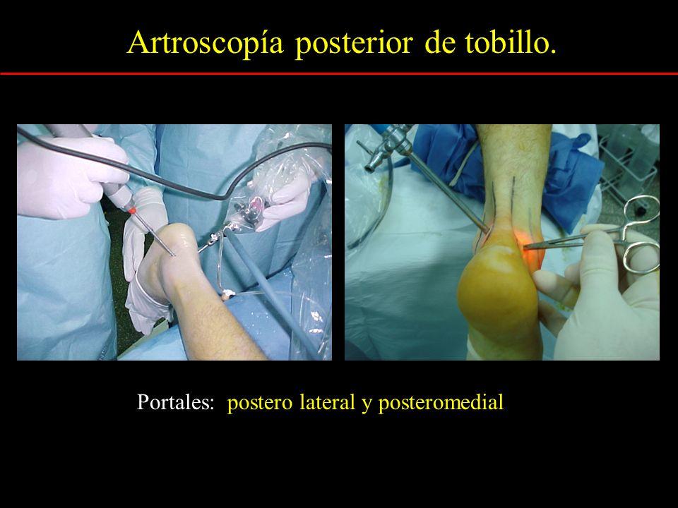 Artroscopía posterior de tobillo.