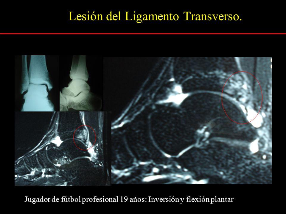 Lesión del Ligamento Transverso.