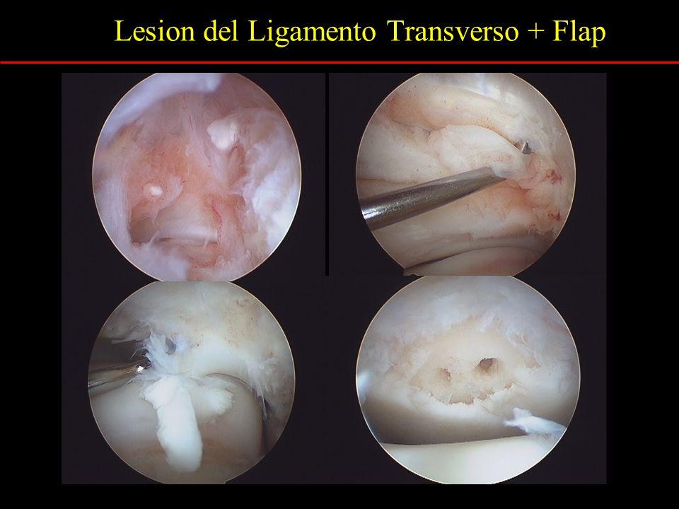 Lesion del Ligamento Transverso + Flap