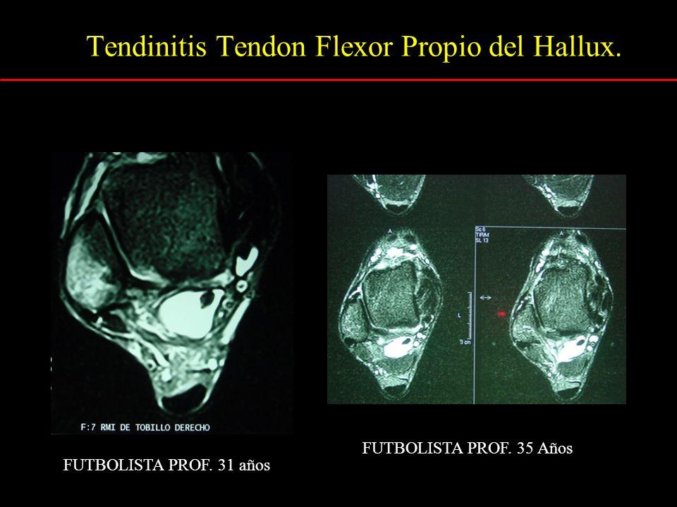 Tendinitis Tendon Flexor Propio del Hallux.
