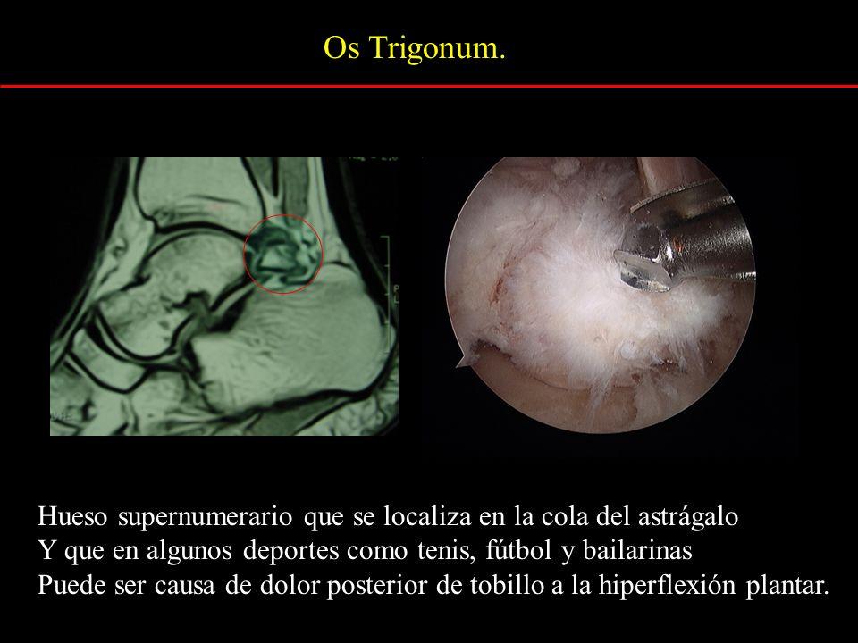 Os Trigonum.Hueso supernumerario que se localiza en la cola del astrágalo. Y que en algunos deportes como tenis, fútbol y bailarinas.