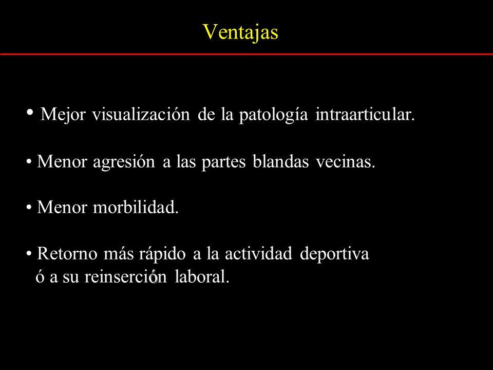 Mejor visualización de la patología intraarticular.