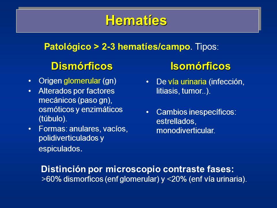 Hematíes Dismórficos Isomórficos