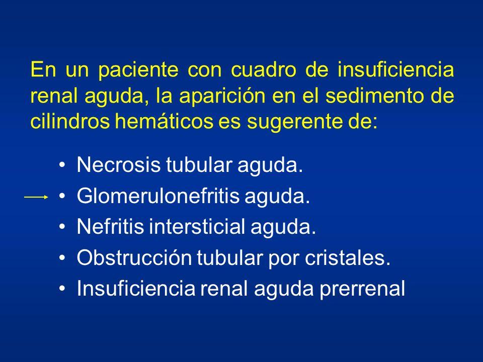 En un paciente con cuadro de insuficiencia renal aguda, la aparición en el sedimento de cilindros hemáticos es sugerente de: