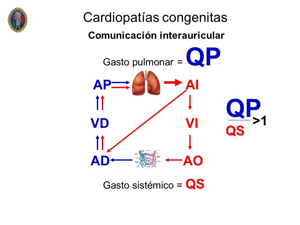 QP Cardiopatías congenitas AP AI QS >1 VD VI AD AO
