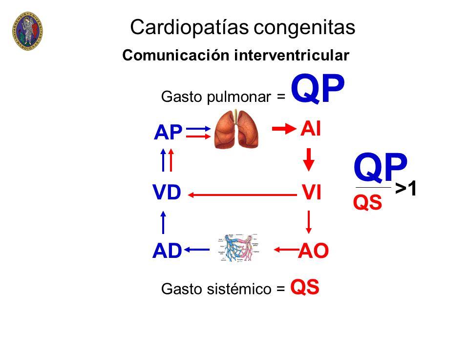 QP Cardiopatías congenitas AI AP QS >1 VD VI AD AO