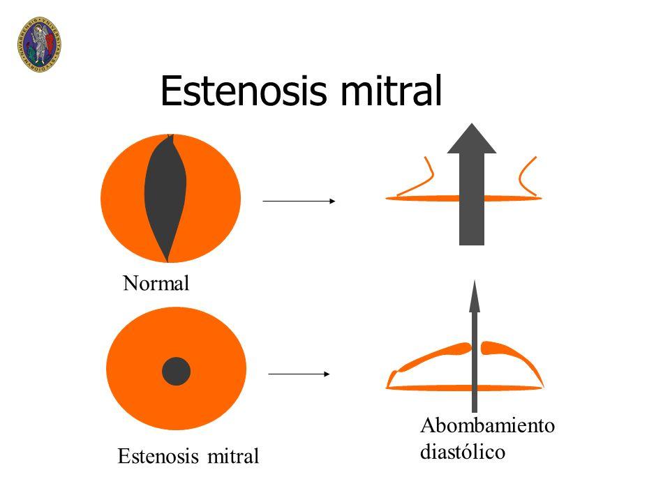 Estenosis mitral Normal Abombamiento diastólico Estenosis mitral