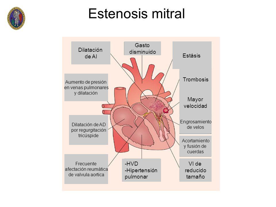 Estenosis mitral Dilatación de AI Gasto disminuido Estásis Trombosis