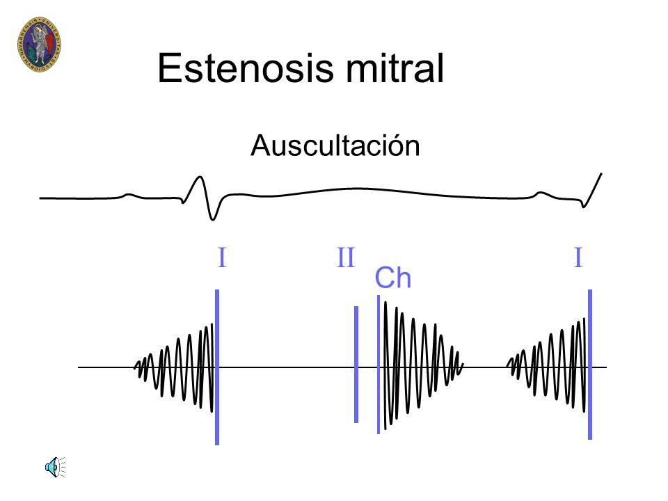 Estenosis mitral Auscultación I II I Ch