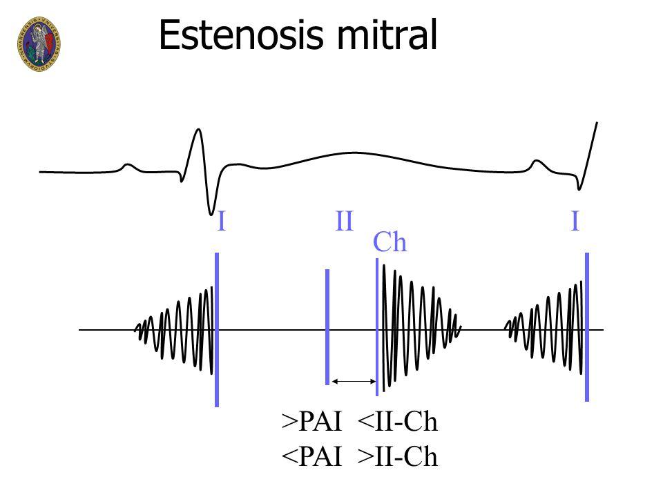Estenosis mitral I II I Ch >PAI <II-Ch <PAI >II-Ch