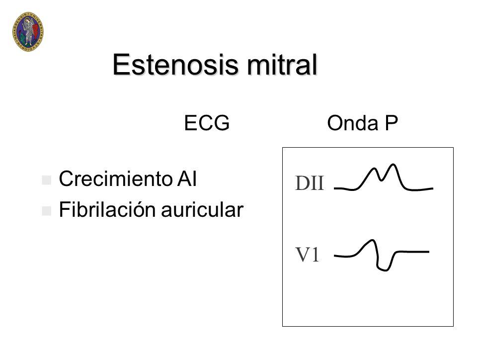 Estenosis mitral ECG DII V1 Onda P Crecimiento AI