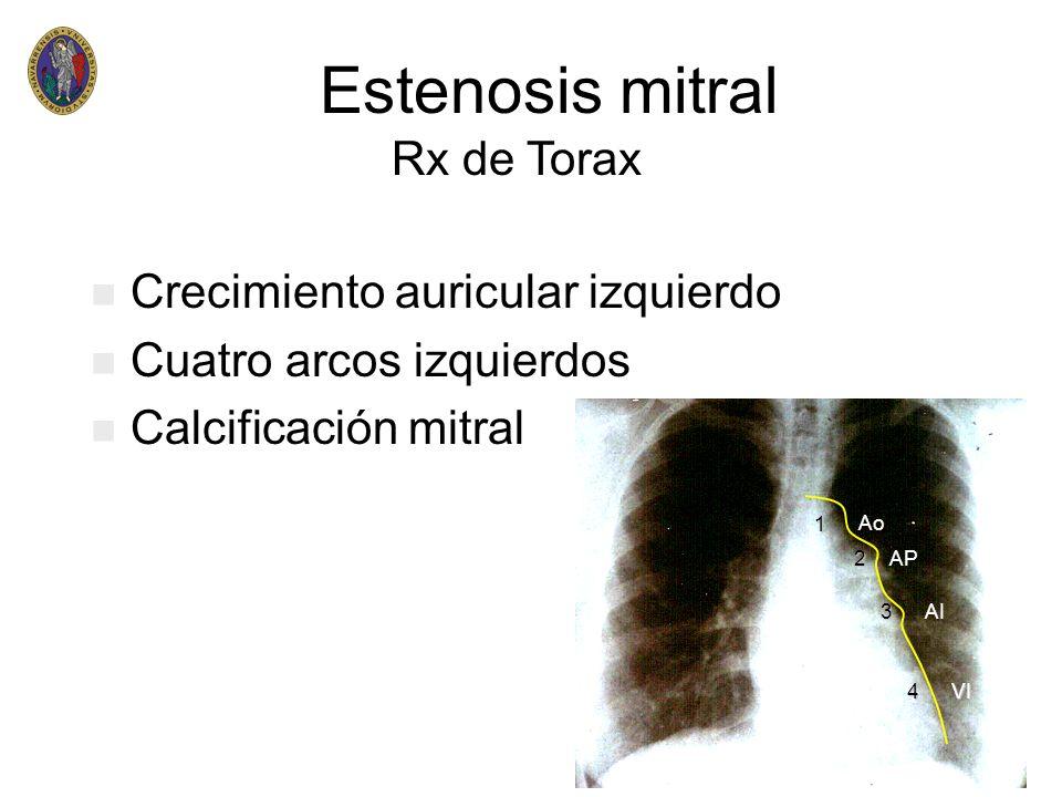 Estenosis mitral Rx de Torax Crecimiento auricular izquierdo