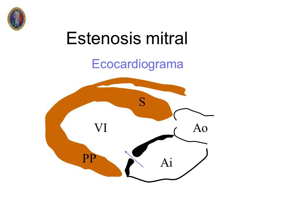Estenosis mitral Ecocardiograma S VI Ao PP Ai