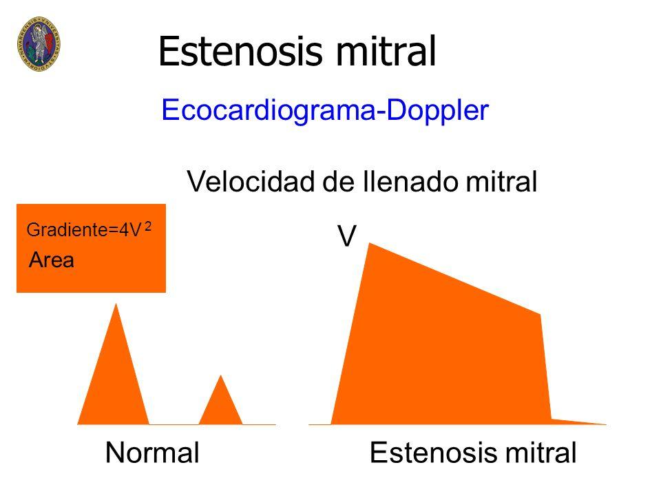 Estenosis mitral Ecocardiograma-Doppler Velocidad de llenado mitral V