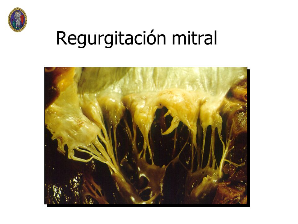 Regurgitación mitral