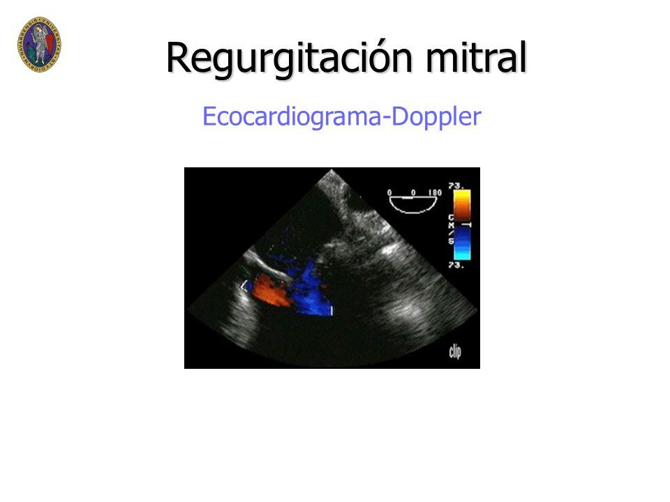 Regurgitación mitral Ecocardiograma-Doppler