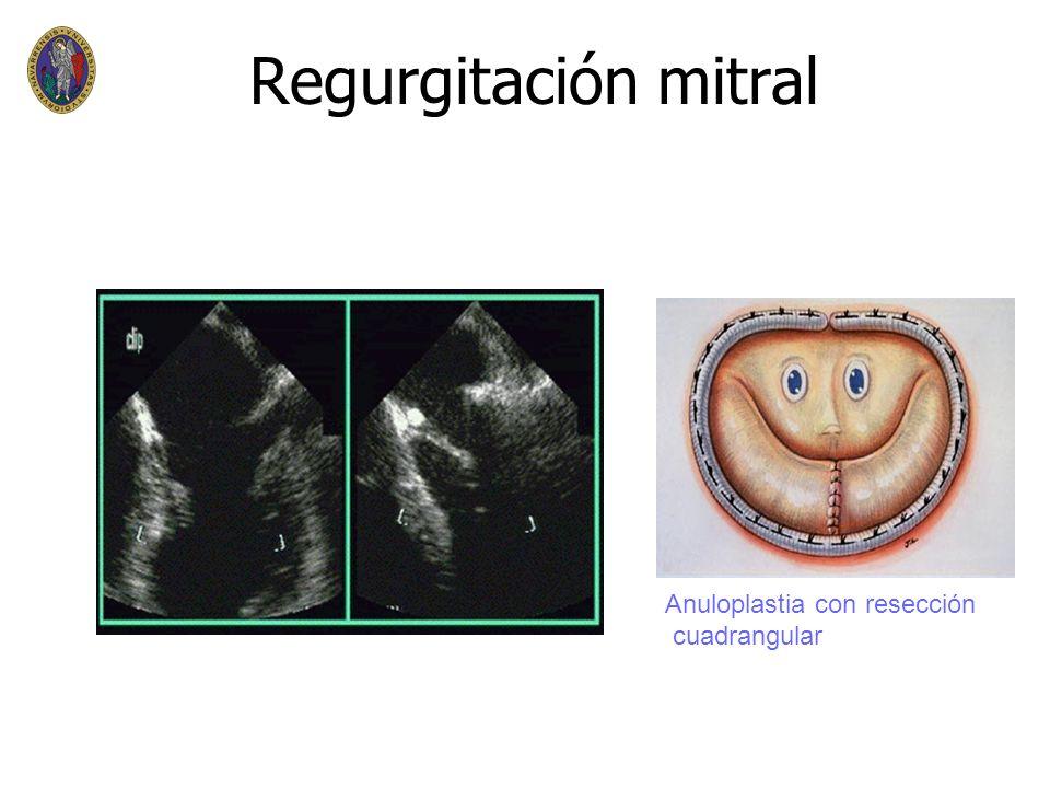 Regurgitación mitral Anuloplastia con resección cuadrangular