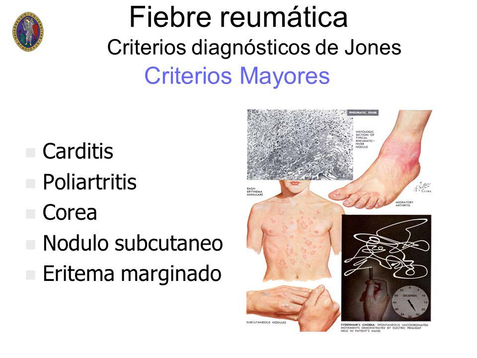 Fiebre reumática Criterios Mayores Criterios diagnósticos de Jones