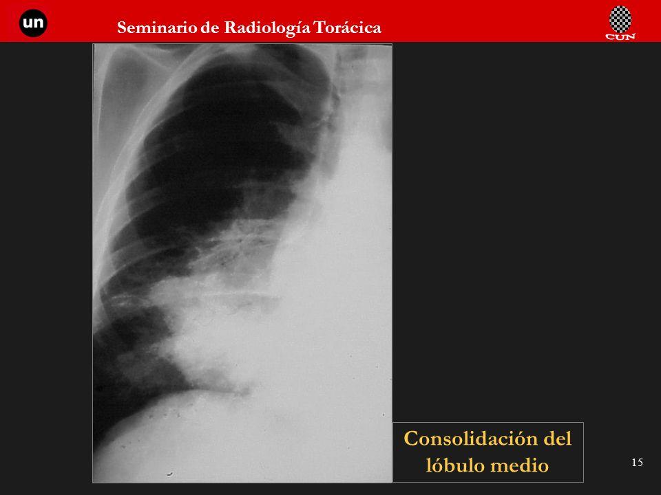 Consolidación del lóbulo medio