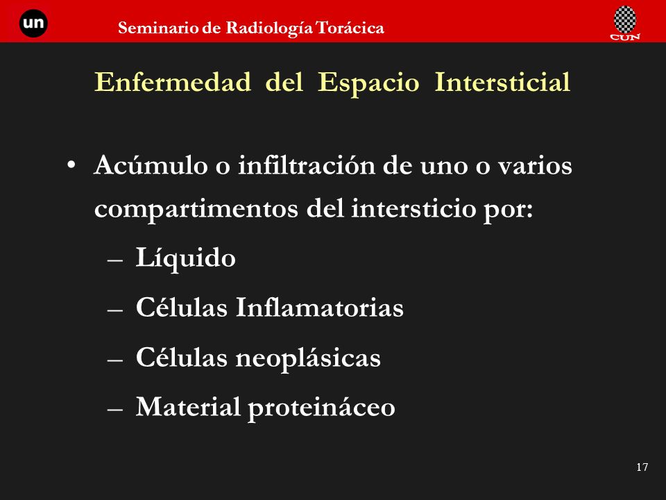 Enfermedad del Espacio Intersticial