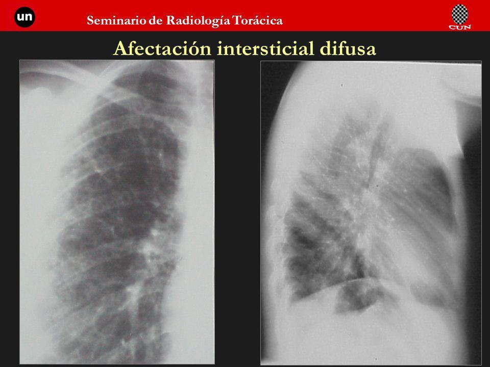 Afectación intersticial difusa