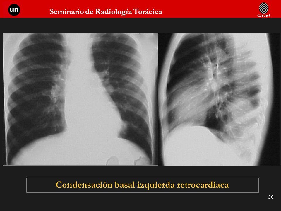Condensación basal izquierda retrocardíaca