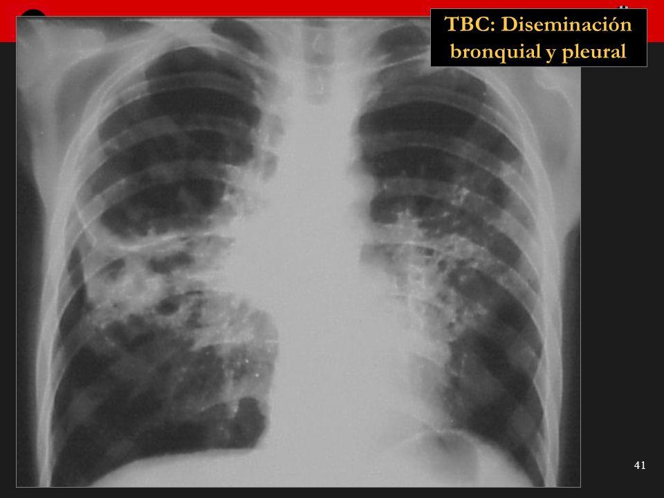 TBC: Diseminación bronquial y pleural