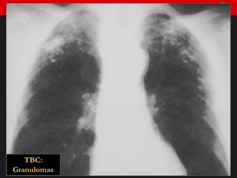TBC: Granulomas
