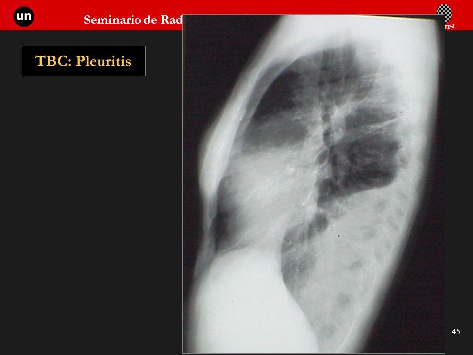 TBC: Pleuritis