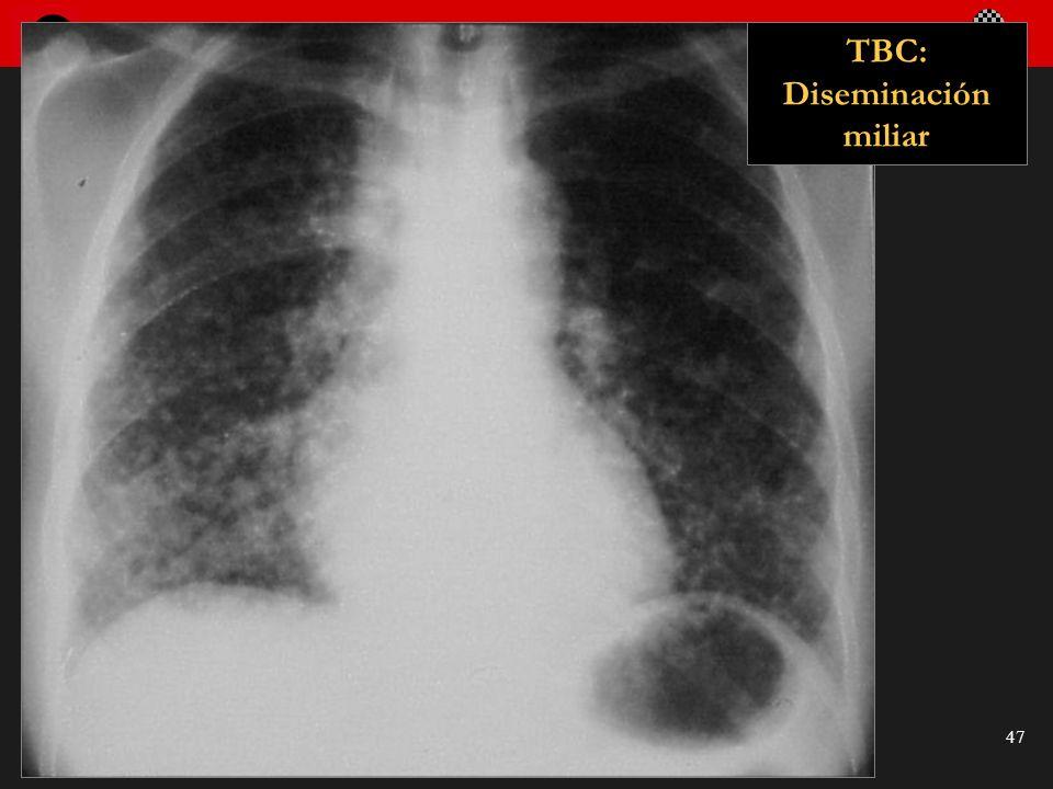 TBC: Diseminación miliar