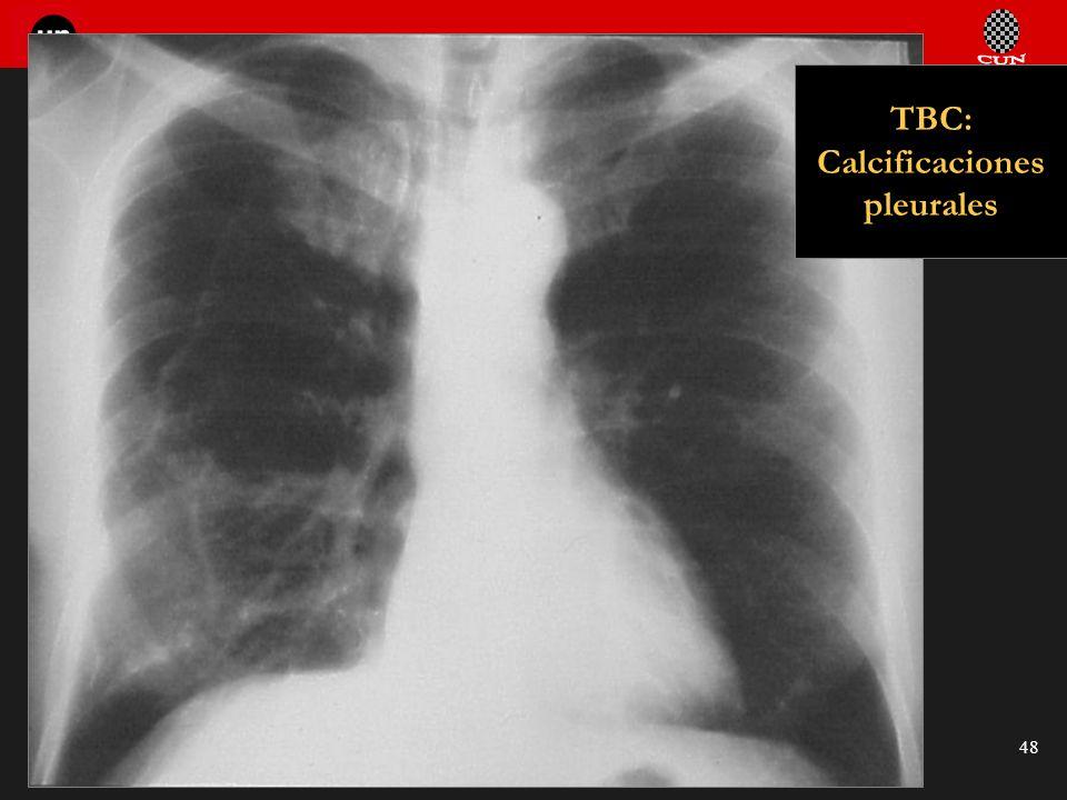 TBC: Calcificaciones pleurales