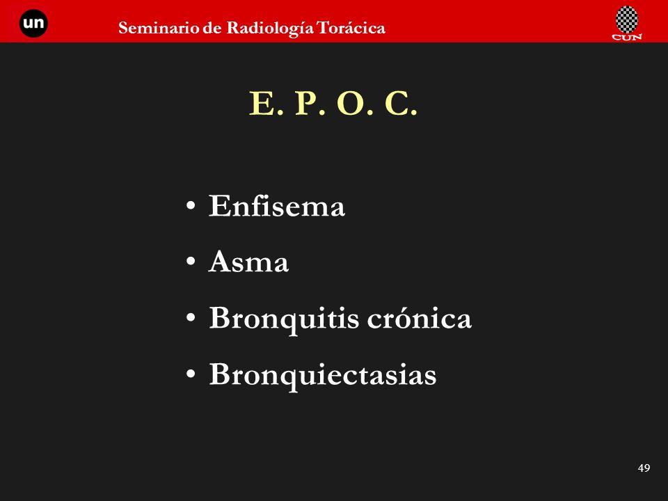 E. P. O. C. Enfisema Asma Bronquitis crónica Bronquiectasias