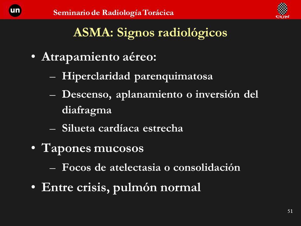 ASMA: Signos radiológicos