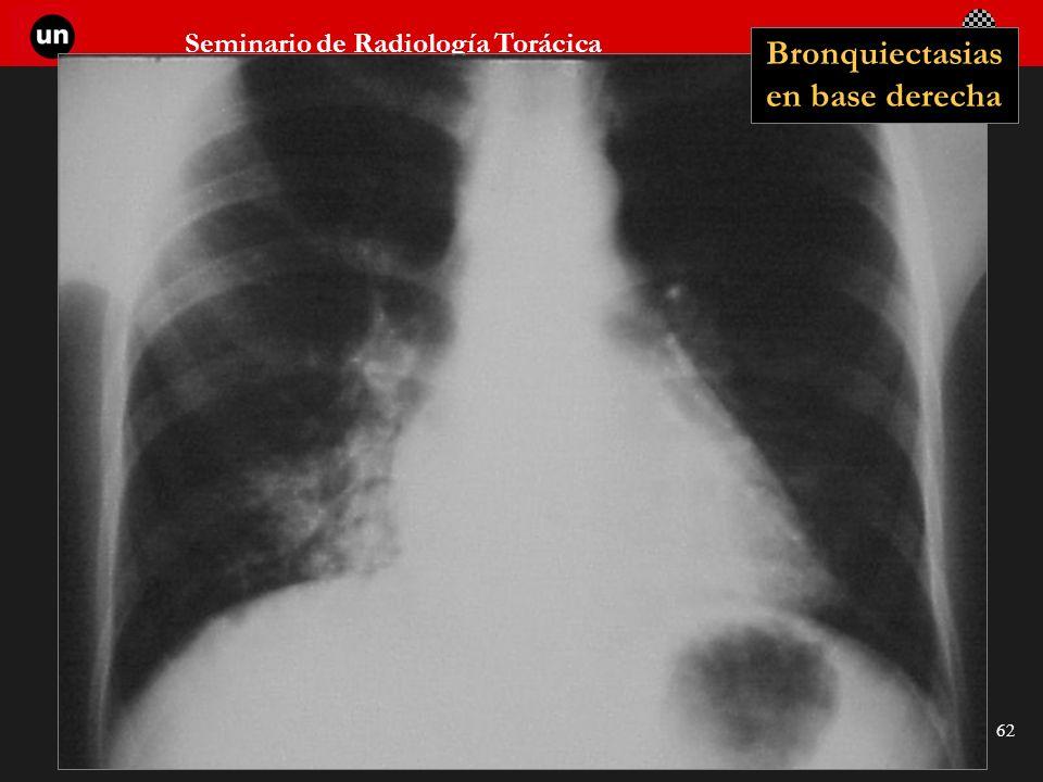 Bronquiectasias en base derecha