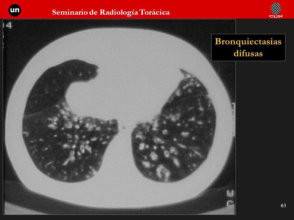 Bronquiectasias difusas