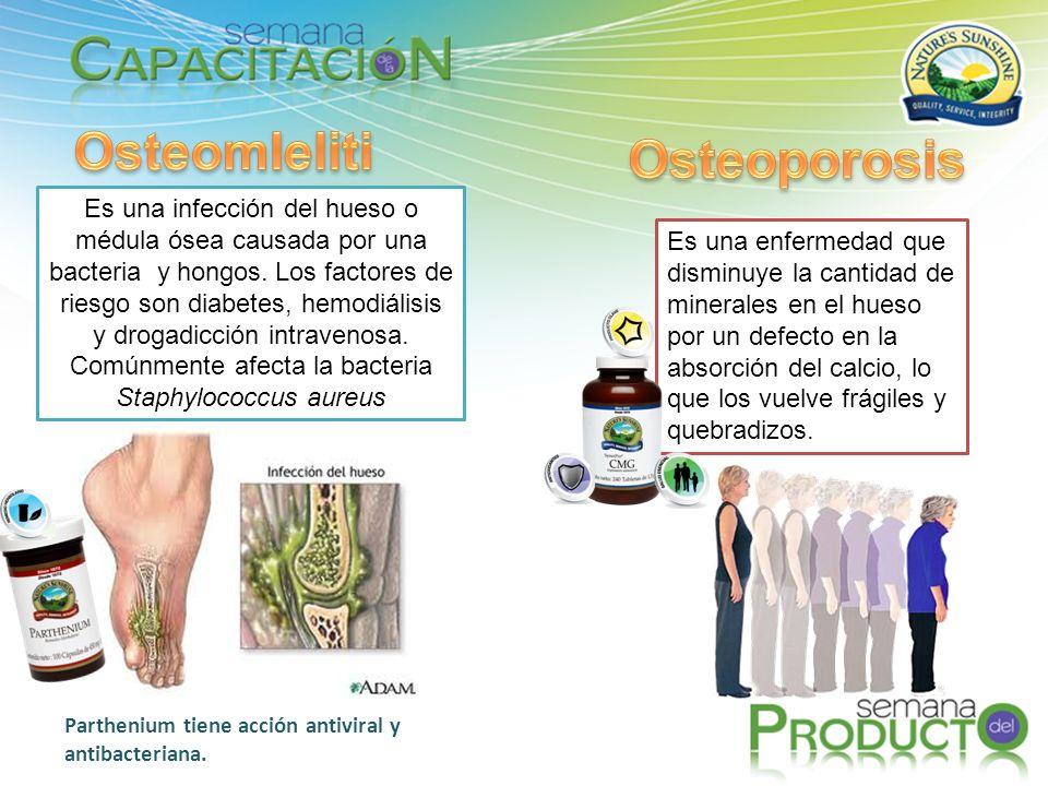 OsteomIelitis Osteoporosis
