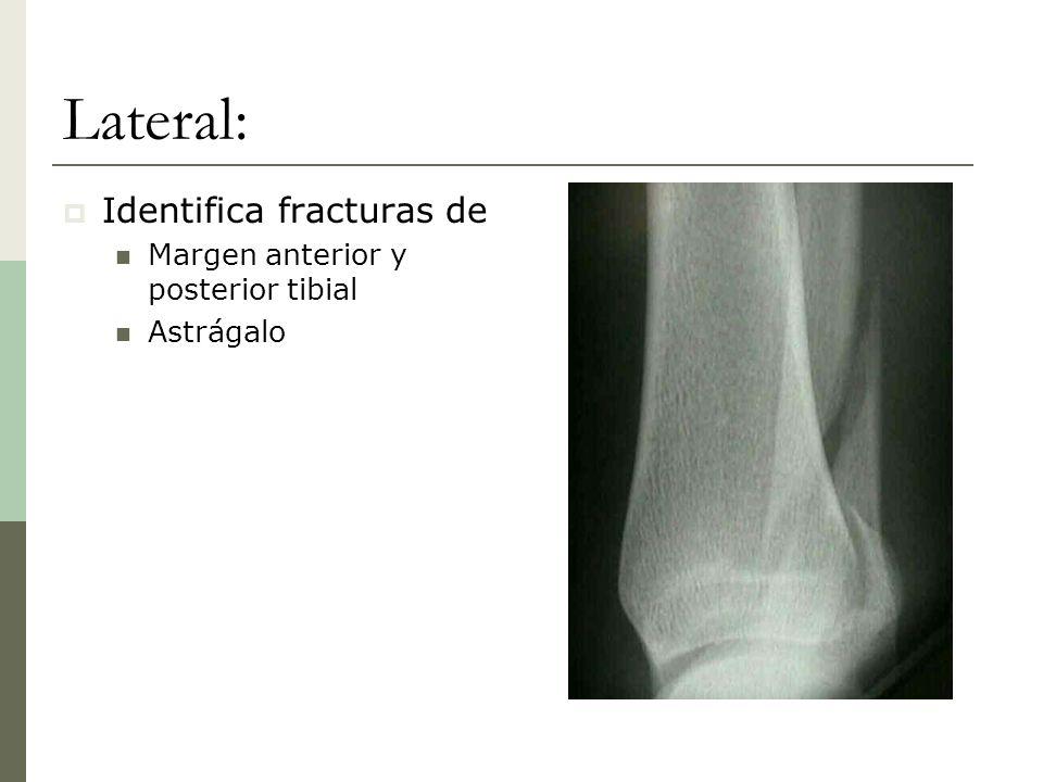 Lateral: Identifica fracturas de Margen anterior y posterior tibial