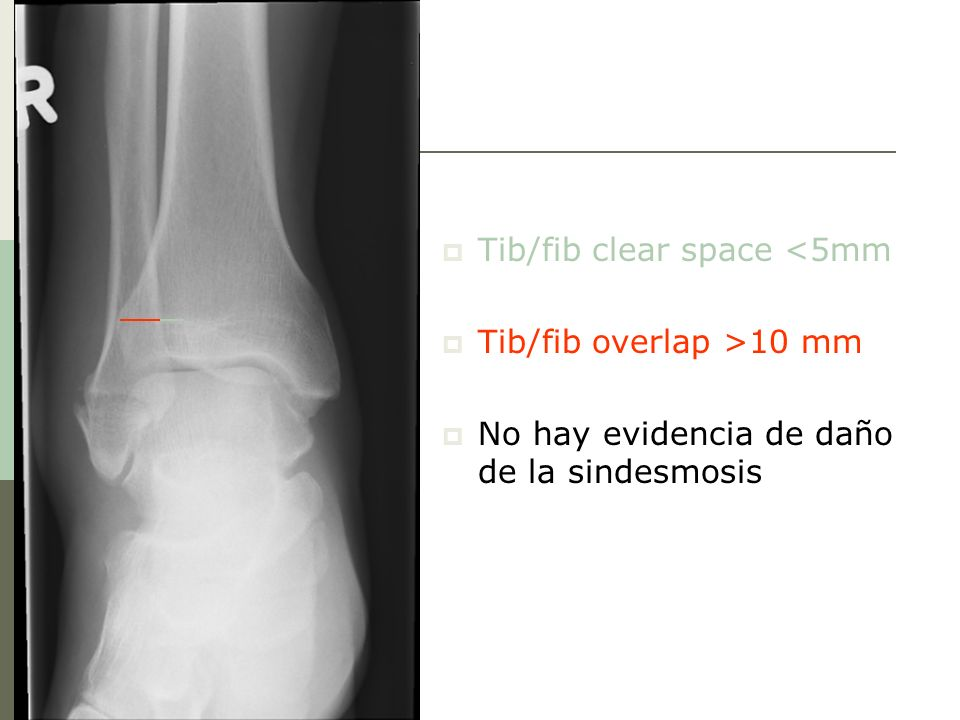Tib/fib clear space <5mm