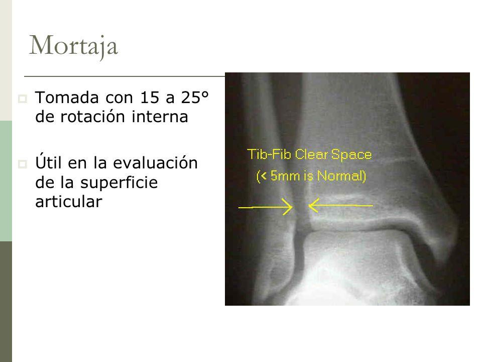 Mortaja Tomada con 15 a 25° de rotación interna