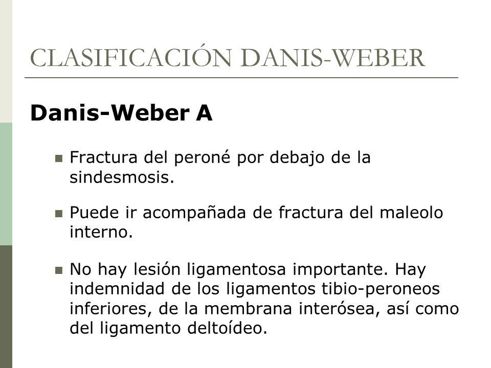 CLASIFICACIÓN DANIS-WEBER
