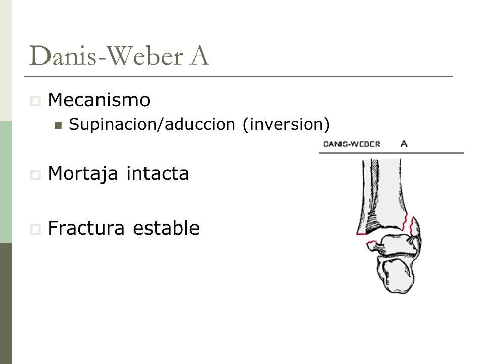 Danis-Weber A Mecanismo Mortaja intacta Fractura estable