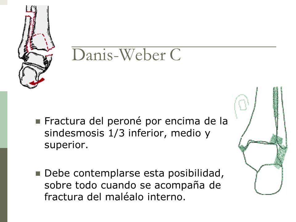 Danis-Weber C Fractura del peroné por encima de la sindesmosis 1/3 inferior, medio y superior.