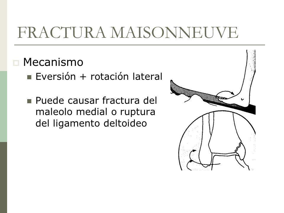 FRACTURA MAISONNEUVE Mecanismo Eversión + rotación lateral