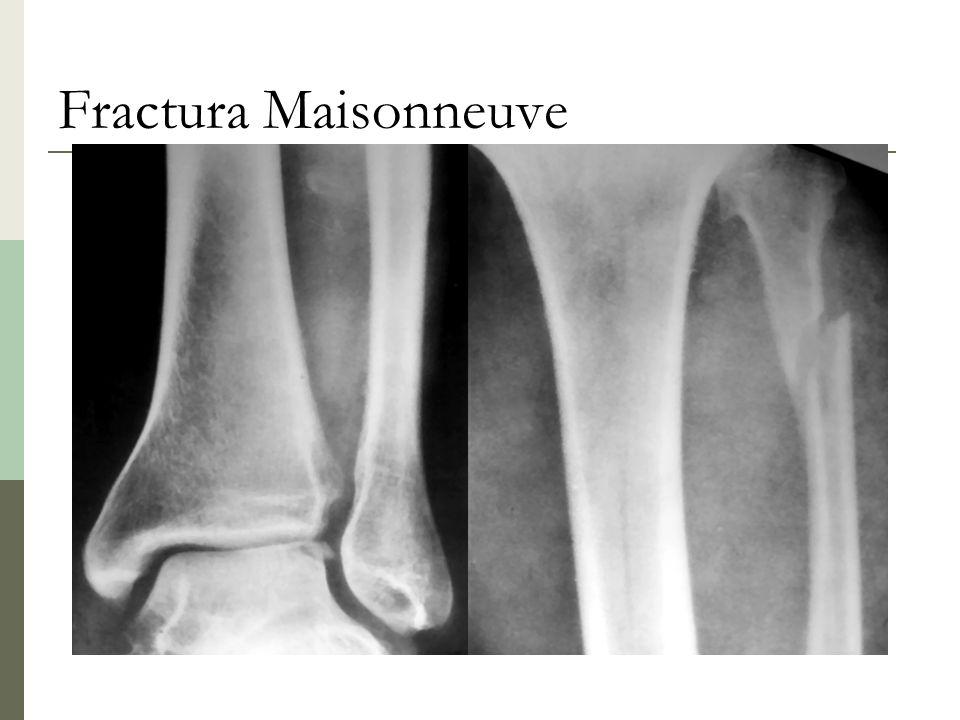 Fractura Maisonneuve
