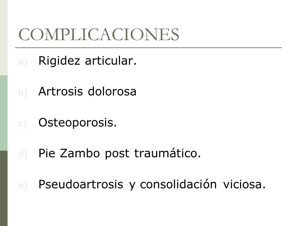 COMPLICACIONES Rigidez articular. Artrosis dolorosa Osteoporosis.